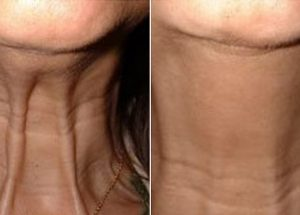 Read more about the article The Botox and Dysport Procedure