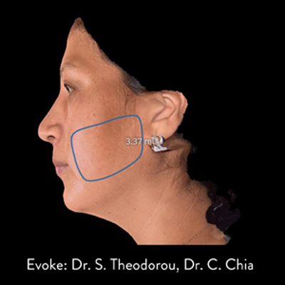 Evoke Procedure in Southwest Florida