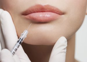 Everything you've ever wanted to know about lip injections