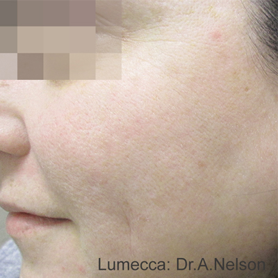Lumeca Procedure in Southwest Florida