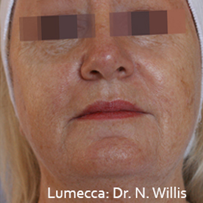 Lumeca Procedure in Denver