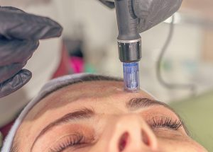Is Microneedling Right For You?