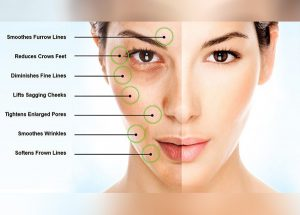 Read more about the article Why Microneedling Is Such A Hot Topic