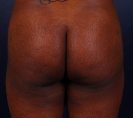 butt-augmentation-fat-transfer-before