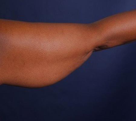 Arm Skin Tightening Bodytite