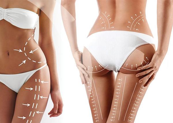 BodyTite-An Amazing Innovation For Skin Tightening