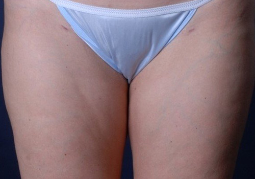 Cellulaze for Cellulite