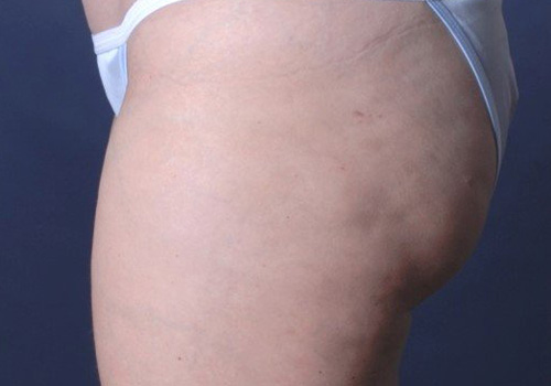 Cellulite One Treatment