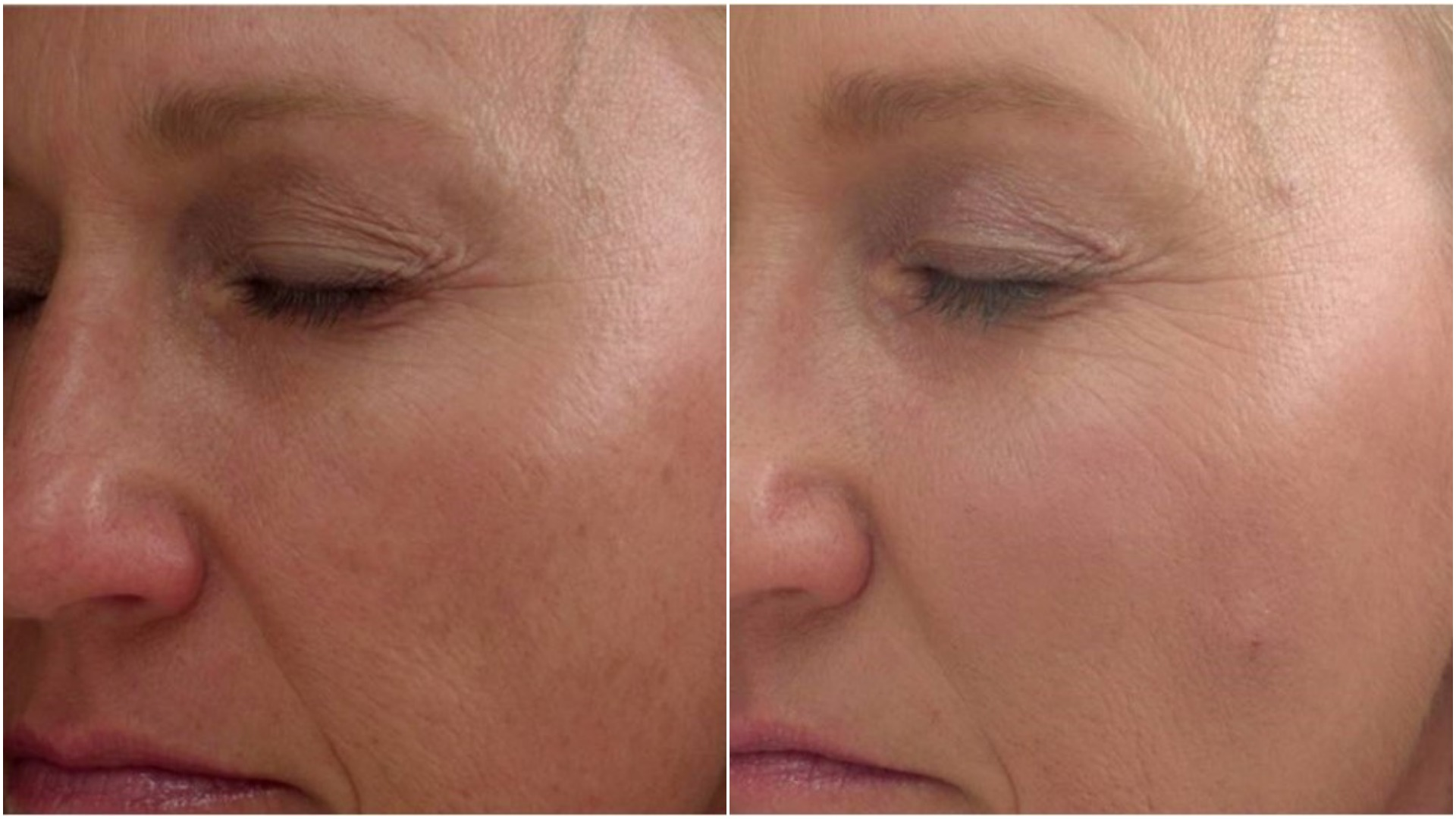 Skin Secrets Tips On Cheek Lifts