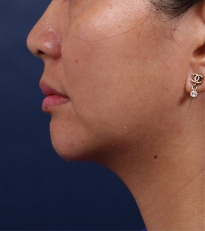 Chin Augmentation with Voluma After