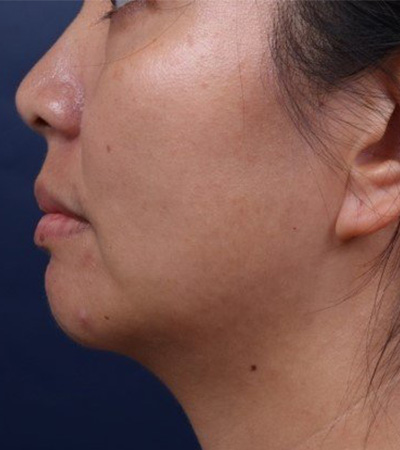 Chin Augmentation with Voluma Before
