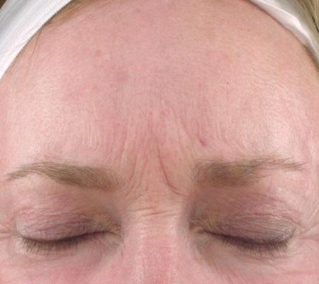 Dot Laser Face Wrinkles After