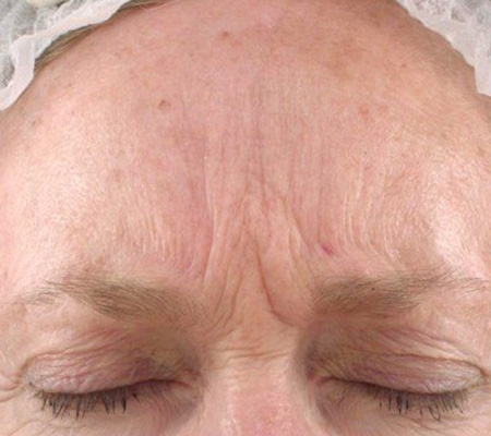 Dot Laser Face Wrinkles Before