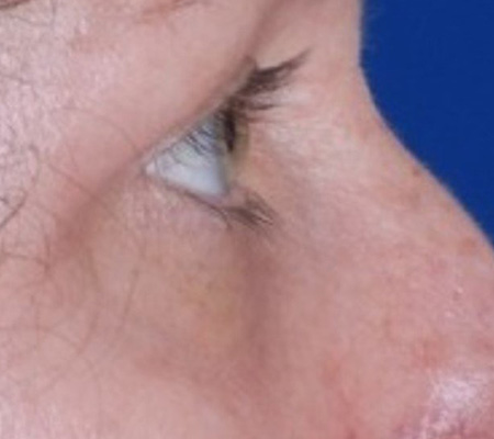Dot Laser For Eye Wrinkles and Skin Tightening After