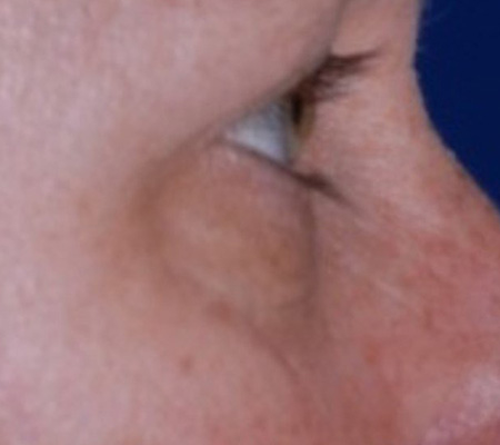 Dot Laser For Eye Wrinkles and Skin Tightening Before