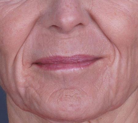 Dot Laser Full Face Wrinkle Treatment After