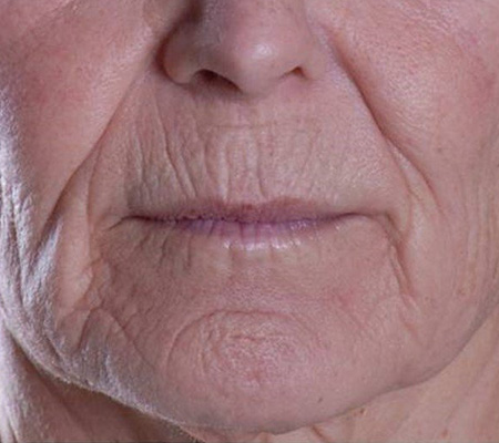 Dot Laser Full Face Wrinkle Treatment Before