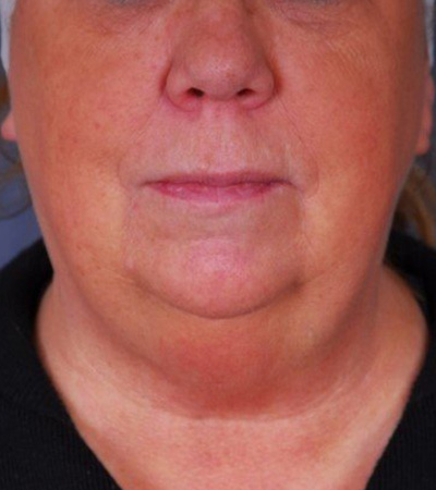 Double Chin Skin Tightening