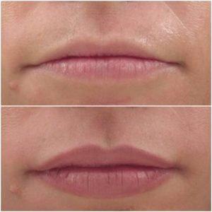 Juvéderm Lip Treatment in Colorado
