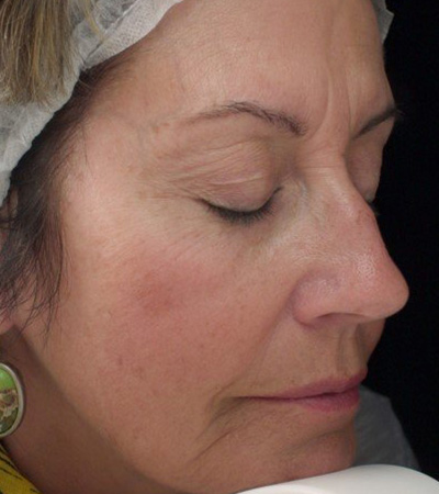 Juvederm to Cheeks and Smile Line Before