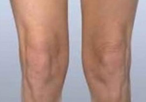 Knee Tightening Bodytite