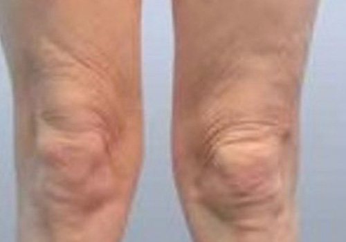 knee-tightening-bodytite-after