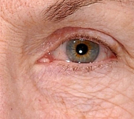 Laser Eye Treatment Before