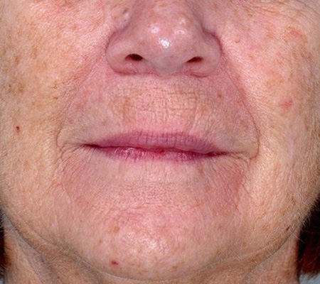Laser Resurfacing Sun Damage