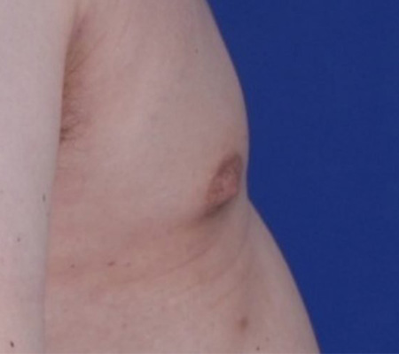 Male Gynecomastia Vaser Lipo