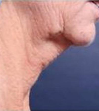 Neck Tite