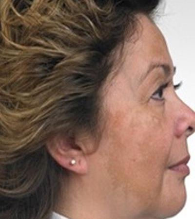 Obagi Skin System