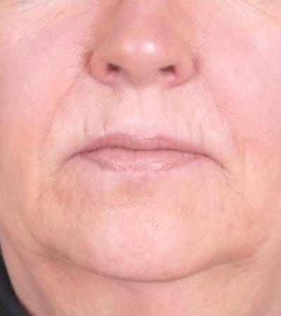 Radiesse Filler to Marionettes