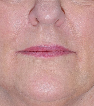 Radiesse Filler to Smile Lines and Marionettes After