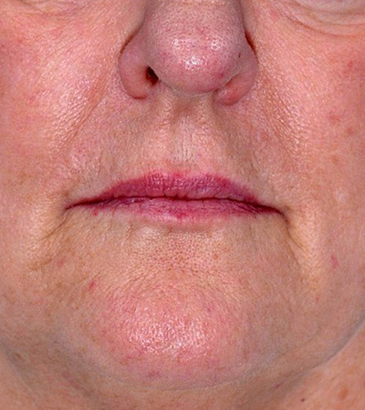 Radiesse Filler to Smile Lines and Marionettes Before