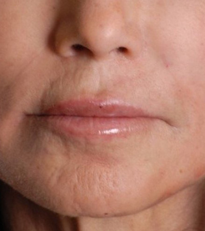 Restylane and Radiesse Fillers After