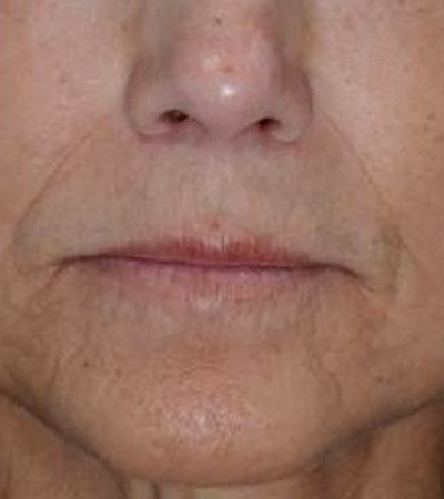 Restylane and Radiesse Fillers Before