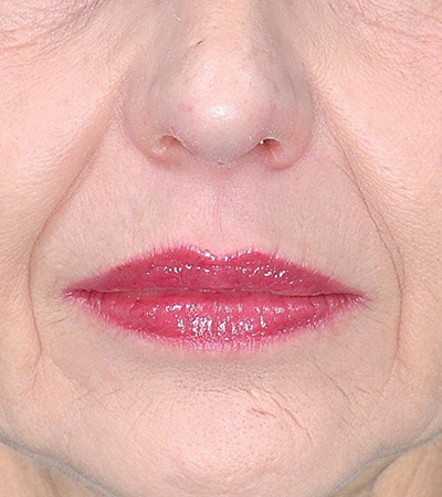 Restylane Filler to Smile Lines Before