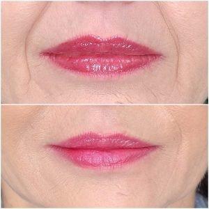 Restylane Smile Line Treatment in Southwest Florida