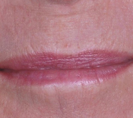 Smoker Lines Laser Treatment After