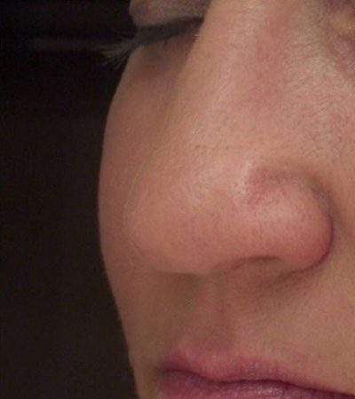 Voluma Cheek Lift After