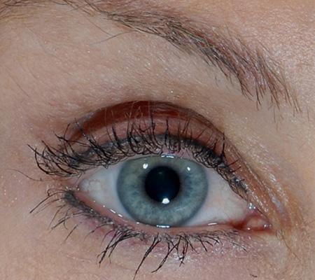 Widen Sleepy Eye With Botox After