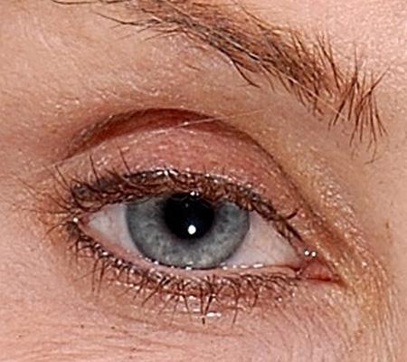 Widen Sleepy Eye With Botox Before