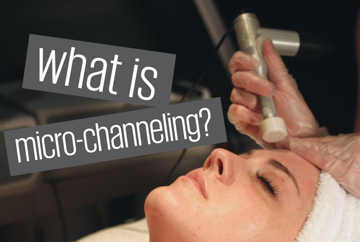 Micro-Channeling by Stacey