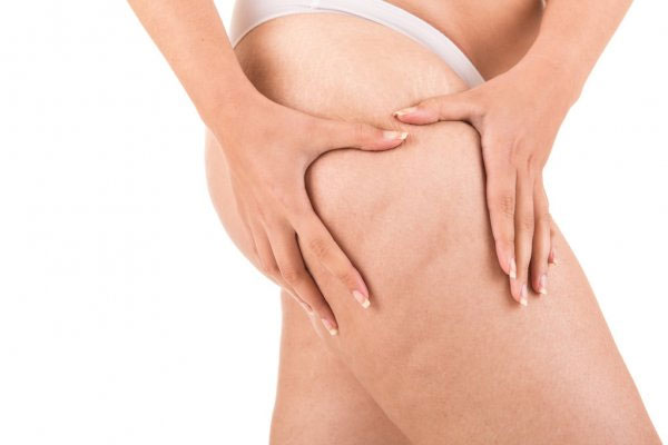 You are currently viewing Procedures to Reduce Cellulite | Cape Coral Medical Spa